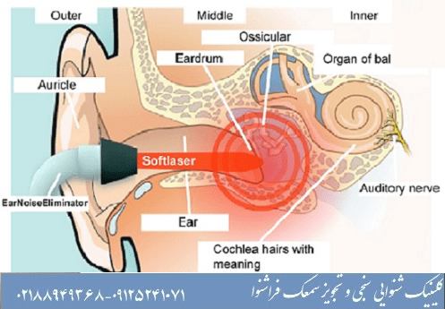 لیزردرمانی وزوز گوش