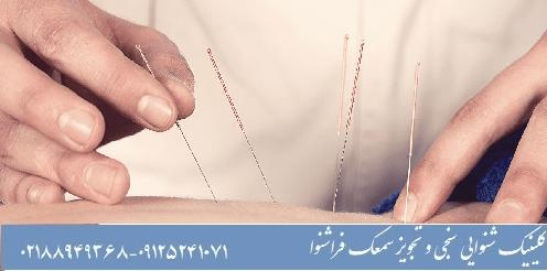 درمان وزوز گوش با طب سوزنی
