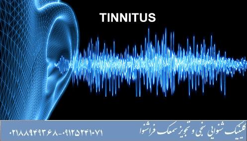 علت افزایش شدت وزوز گوش به مرور زمان