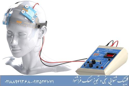 تحریک الکتریکی tDCS و وزوز گوش