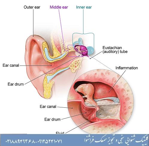علت تیرکشیدن گوش
