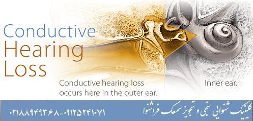 کم شنوایی انتقالی
