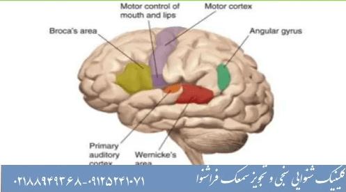 آیا لکنت زبان قابل درمان است؟
