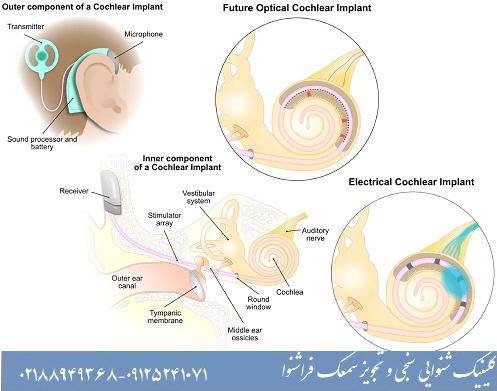 بیماری نوروپاتی در کودکان و نوزادان