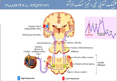 مشکلات بیماری نوروپاتی در کودکان و نوزادان