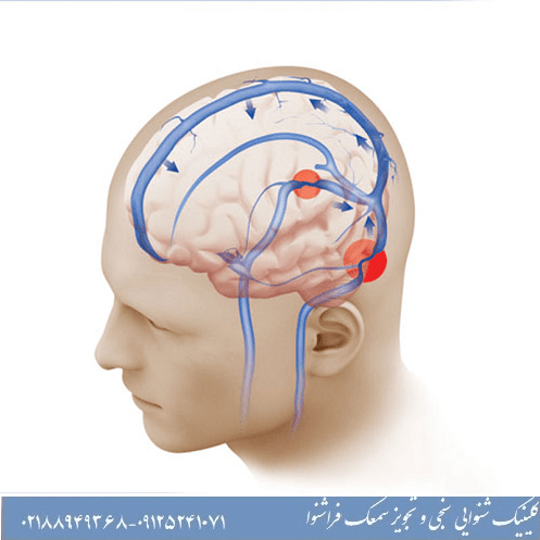چه قرص هایی برای درمان وزوز گوش مناسب است؟