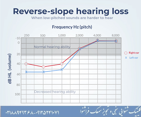 کم شنوایی فرکانس پایین